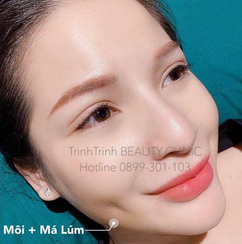 Trinh Beauty&Clinic
