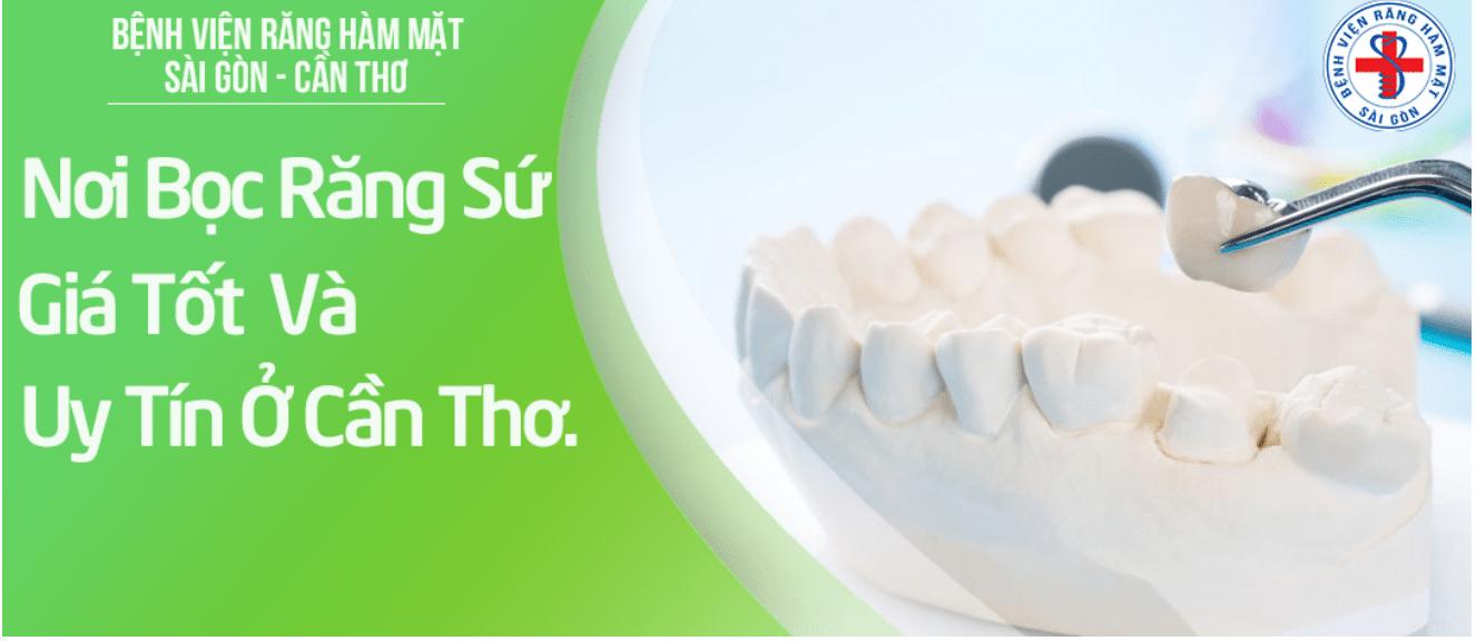 bọc răng sứ Cần Thơ