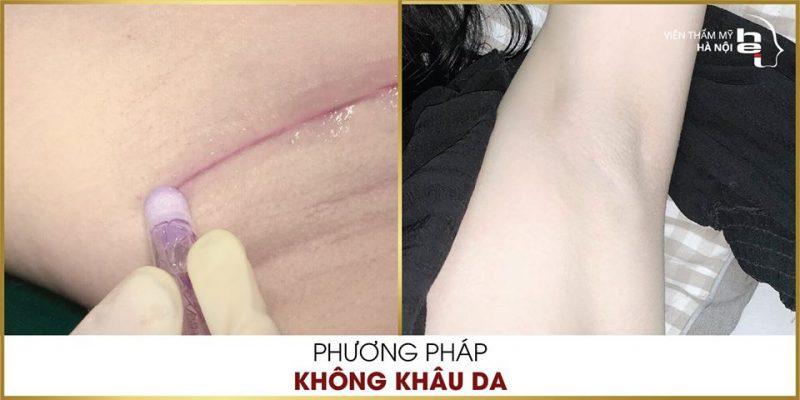 địa chỉ nâng ngực Hà Nội